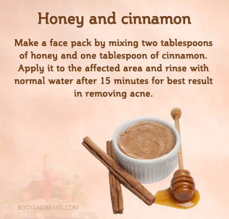 Honey and cinnamon for removing acne