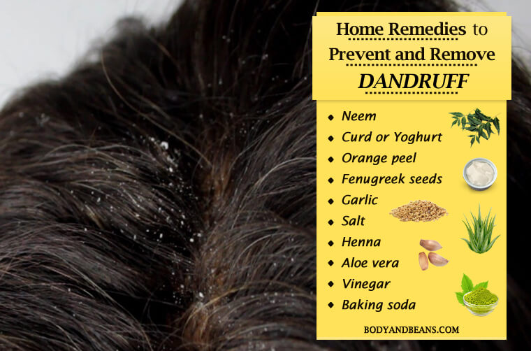 Home Remedies to Prevent and Remove Dandruff Easily at Home