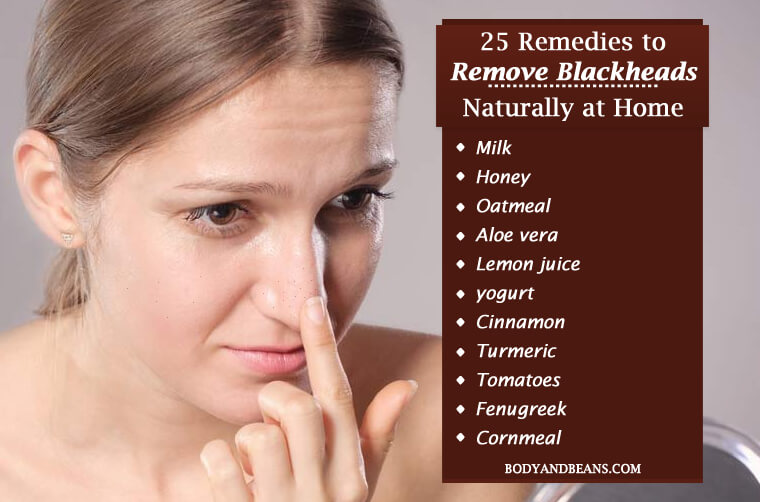 25 Remedies to Remove Blackheads Naturally at Home