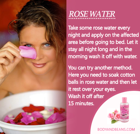 Remedies to Get Rid of Dark Circles naturally: Here's how to use Rose water(gulab jal) to remove dark circles