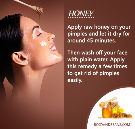 Does honey really get rid of pimples
