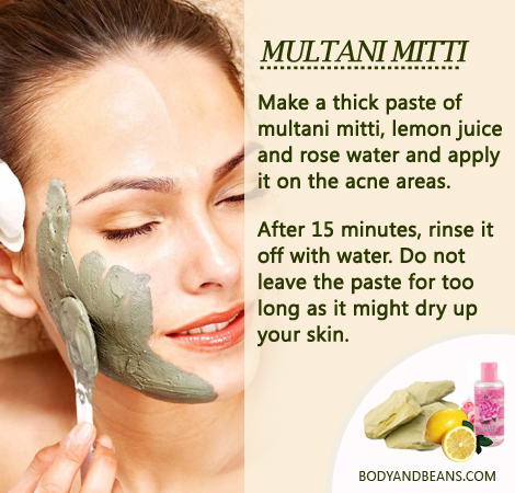 Remedies to Get Rid of Pimples: Here's how to use Multani mitti to remove pimples