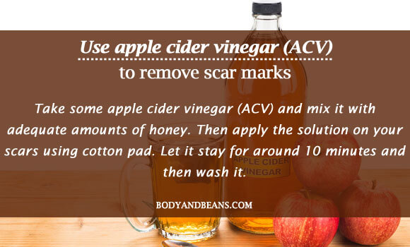 Use apple cider vinegar (ACV) to remove scar marks