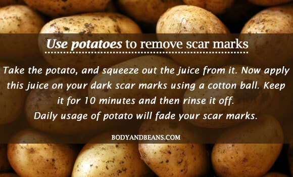 Use potatoes to remove scar marks