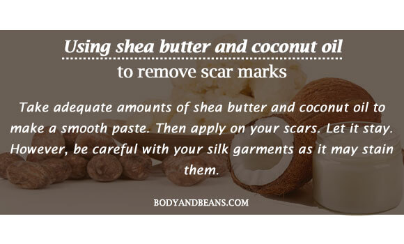 Using shea butter and coconut oil to remove scar marks