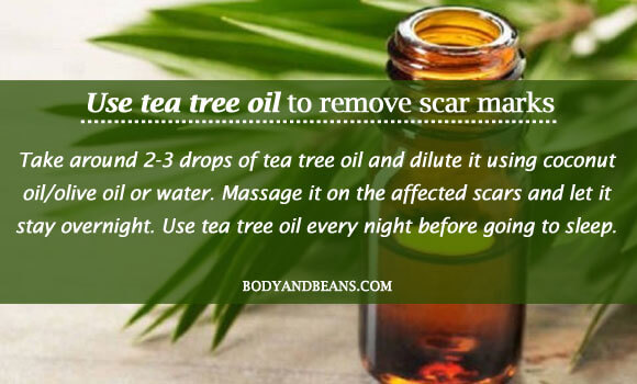Use tea tree oil to remove scar marks