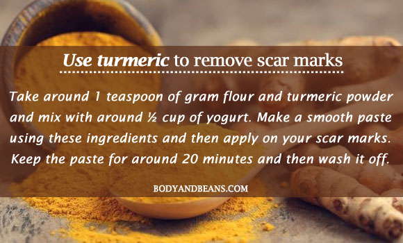 Use turmeric to remove scar marks