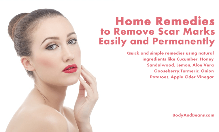 Home Remedies to Remove Scar Marks