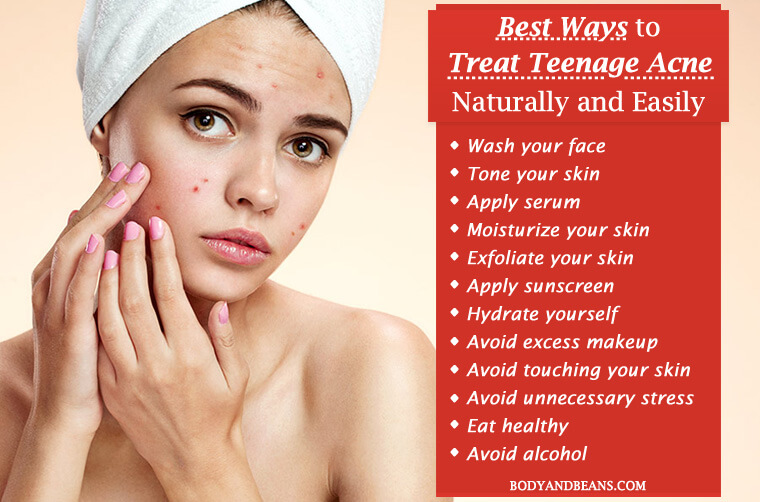 14 Best Ways to Treat Teenage Acne Naturally and Easily