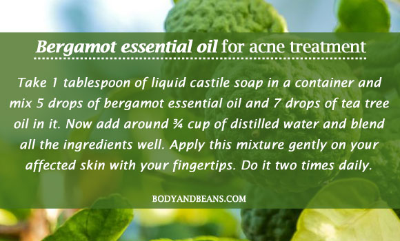 Bergamot essential oil for acne