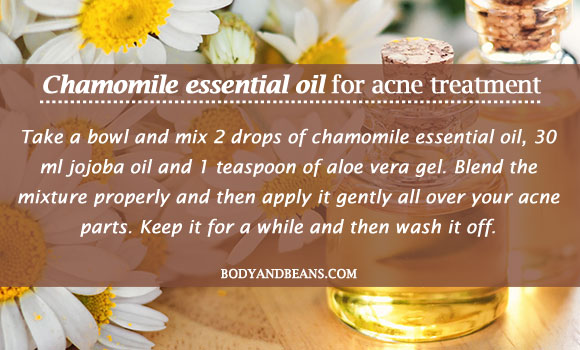 Chamomile essential oil for acne