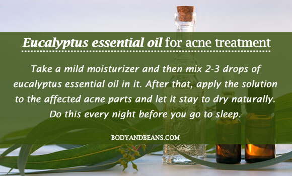 Eucalyptus essential oil for acne treatment