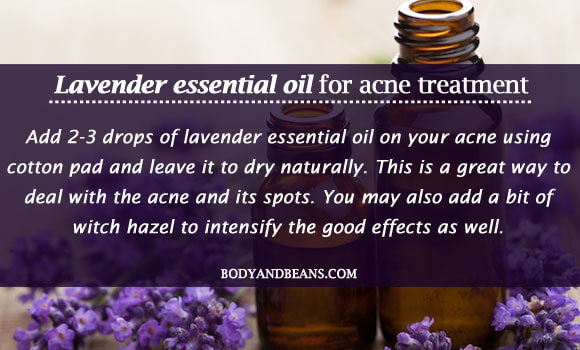 Lavender essential oil for acne treatment