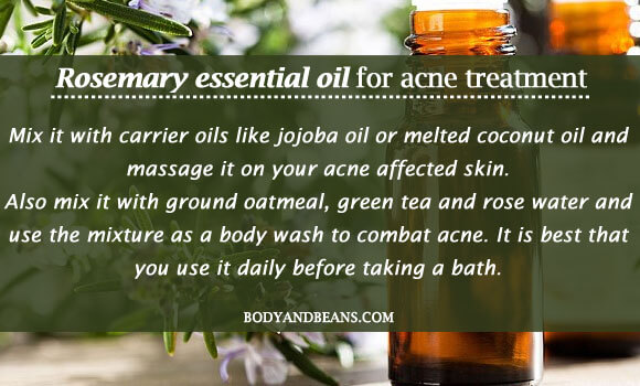 Rosemary essential oil for acne treatment