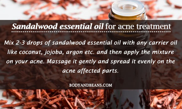 Sandalwood essential oil for acne