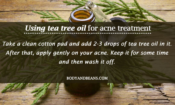 Using tea tree oil for acne treatment