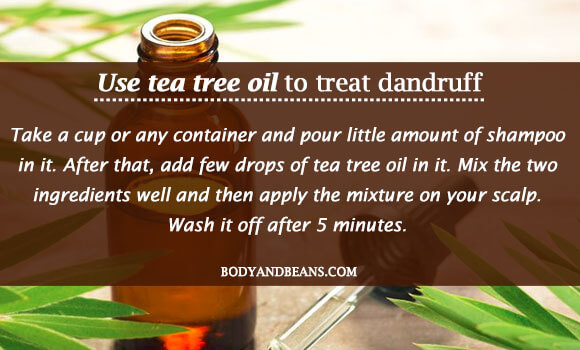 Use tea tree oil to treat dandruff