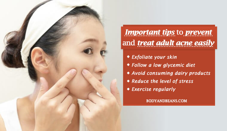 Important tips to prevent and treat adult acne easily