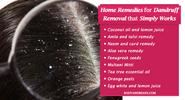 Natural Home Remedies for Dandruff Removal