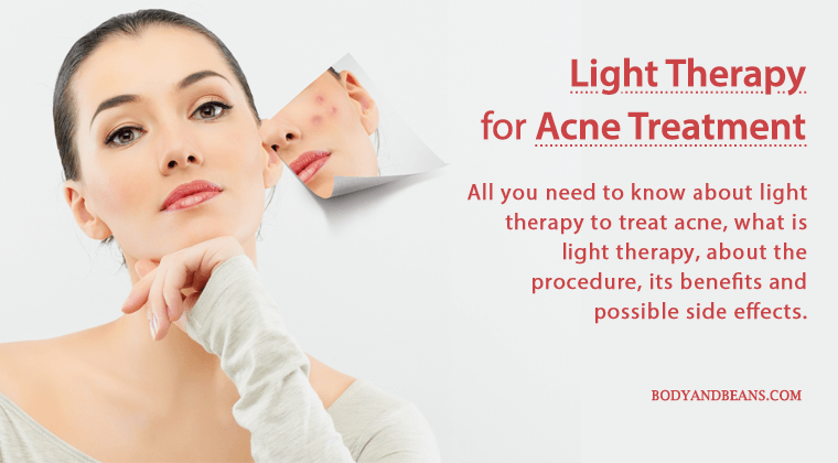 All about light therapy for Acne treatment: the benefits and possible side effects